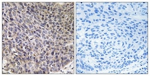 Immunohistochemistry (Formalin/PFA-fixed paraffin-embedded sections) - CYP4B1 antibody (ab110012)
