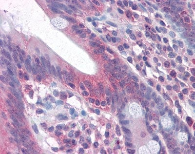 Immunohistochemistry (Formalin/PFA-fixed paraffin-embedded sections) - Anti-Fas antibody (ab110021)