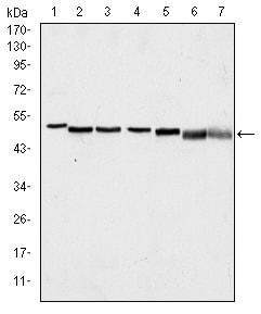 Western blot - p63 antibody [4E5] (ab110038)