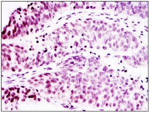 Immunohistochemistry (Formalin/PFA-fixed paraffin-embedded sections) - p63 antibody [4E5] (ab110038)