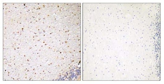 Immunohistochemistry (Formalin/PFA-fixed paraffin-embedded sections) - PAK5 antibody (ab110069)