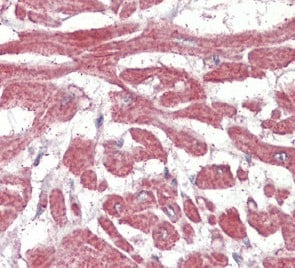 Immunohistochemistry (Formalin/PFA-fixed paraffin-embedded sections) - BLBP antibody (ab110099)