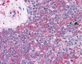 Immunohistochemistry (Formalin/PFA-fixed paraffin-embedded sections) - LST1 antibody [LST1/02] (ab110135)