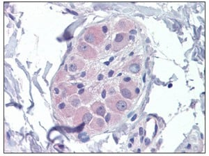 Immunohistochemistry (Formalin/PFA-fixed paraffin-embedded sections) - PRKAB2 antibody (ab110141)