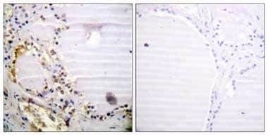 Immunohistochemistry (Formalin/PFA-fixed paraffin-embedded sections) - CtIP antibody (ab110143)