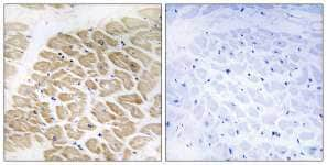 Immunohistochemistry (Formalin/PFA-fixed paraffin-embedded sections) - Melanoma Inhibitory Activity antibody (ab110150)