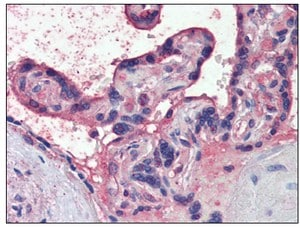 Immunohistochemistry (Formalin/PFA-fixed paraffin-embedded sections) - Nodal antibody (ab110162)