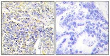 Immunohistochemistry (Formalin/PFA-fixed paraffin-embedded sections) - Adenylate Kinase 1 antibody (ab110164)