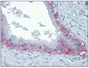 Immunohistochemistry (Formalin/PFA-fixed paraffin-embedded sections) - Integrin beta 4 antibody [439-9B] (ab110167)
