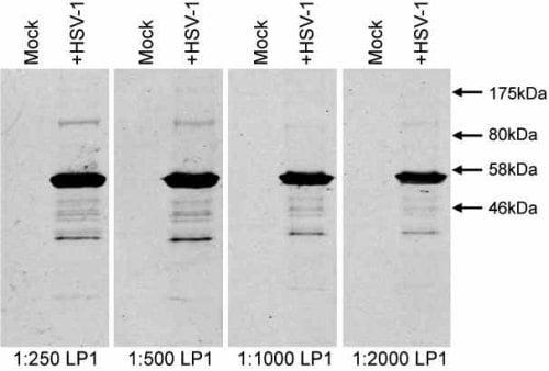 Western blot - HSV1 + HSV2 VP16 antibody [LP1] (ab110226)