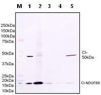 Western blot - Anti-NDUFS2 antibody [7A12BE5AD5] (ab110249)