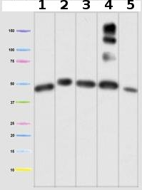 Western blot - Ubiquinol-Cytochrome C Reductase Core Protein I antibody [16D10AD9AH5] (ab110252)