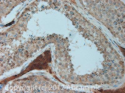 Immunohistochemistry (Formalin/PFA-fixed paraffin-embedded sections) - Anti-Smac / Diablo antibody [8H5AA3] (ab110288)