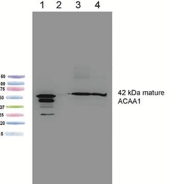 Western blot - Anti-ACAA1 antibody [2H6BE7 ] (ab110289)