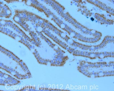 Immunohistochemistry (Formalin/PFA-fixed paraffin-embedded sections) - Anti-CPS1 antibody [2E4AE11 ] (ab110303)