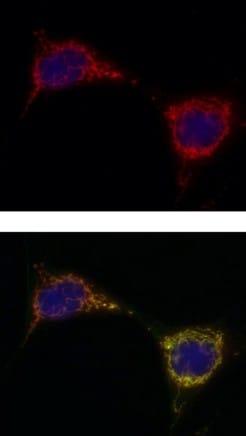 Immunocytochemistry/ Immunofluorescence - PCB antibody [3H2AD9 ] (ab110314)