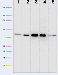 Western blot - Pyruvate Dehydrogenase E1-alpha subunit antibody [8D10E6 ] (ab110334)