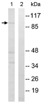 Western blot - STATIP1 antibody (ab110362)