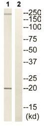 Western blot - RGS10 antibody (ab110454)
