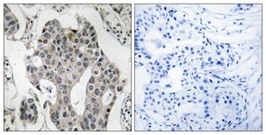 Immunohistochemistry (Formalin/PFA-fixed paraffin-embedded sections) - RAB3GAP2 antibody (ab110462)