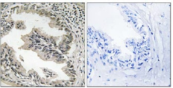 Immunohistochemistry (Formalin/PFA-fixed paraffin-embedded sections) - SH3GLB2 antibody (ab110475)