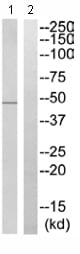 Western blot - SYT13 antibody (ab110520)