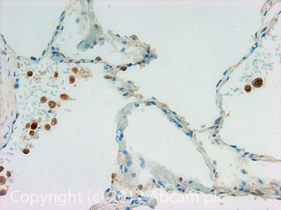 Immunohistochemistry (Formalin/PFA-fixed paraffin-embedded sections) - Anti-Hexokinase 1 antibody (ab110529)