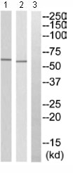 Western blot - TSEN54 antibody (ab110723)