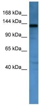 Western blot - AF4 antibody (ab110743)