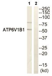 Western blot - ATP6V1B1 antibody (ab110752)