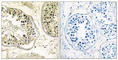 Immunohistochemistry (Formalin/PFA-fixed paraffin-embedded sections) - CHST13 antibody (ab110762)