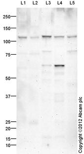 Western blot - Anti-LATS2 antibody (ab110780)