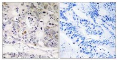 Immunohistochemistry (Formalin/PFA-fixed paraffin-embedded sections) - UBTD1 antibody (ab110841)