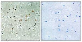 Immunohistochemistry (Formalin/PFA-fixed paraffin-embedded sections) - RPS6KL1 antibody (ab110847)