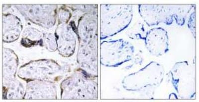 Immunohistochemistry (Formalin/PFA-fixed paraffin-embedded sections) - Elongation of very long chain fatty acids protein 3 antibody (ab110872)
