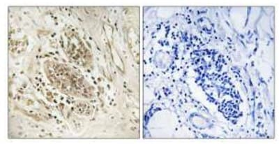 Immunohistochemistry (Formalin/PFA-fixed paraffin-embedded sections) - POLE antibody (ab110876)