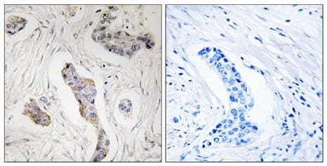 Immunohistochemistry (Formalin/PFA-fixed paraffin-embedded sections) - KIAA0100 antibody (ab110911)