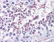Immunohistochemistry (Formalin/PFA-fixed paraffin-embedded sections) - DUSP14 antibody (ab110938)
