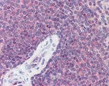 Immunohistochemistry (Formalin/PFA-fixed paraffin-embedded sections) - Orai1 antibody (ab110941)