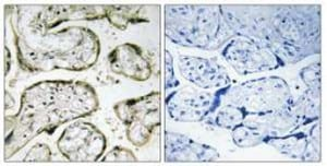 Immunohistochemistry (Formalin/PFA-fixed paraffin-embedded sections) - MRPL42 antibody (ab110942)