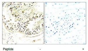 Immunohistochemistry (Formalin/PFA-fixed paraffin-embedded sections) - DYNLRB2 antibody (ab110946)