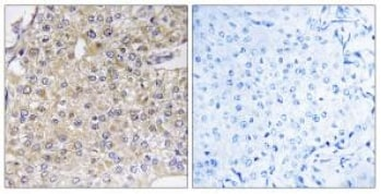 Immunohistochemistry (Formalin/PFA-fixed paraffin-embedded sections) - ALS2CR3 antibody (ab110947)