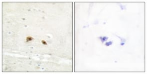 Immunohistochemistry (Formalin/PFA-fixed paraffin-embedded sections) - EGR3 antibody (ab110950)