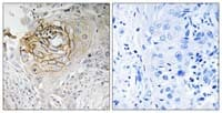 Immunohistochemistry (Formalin/PFA-fixed paraffin-embedded sections) - Anti-Nav1.7 antibody (ab110961)
