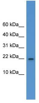 Western blot - IL1F5 antibody (ab110986)