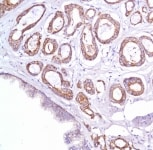 Immunohistochemistry (Formalin/PFA-fixed paraffin-embedded sections) - Xenotropic MuLV-related virus antibody (ab111014)