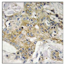 Immunohistochemistry (Formalin/PFA-fixed paraffin-embedded sections) - Transmembrane 4 L6 family member 1 antibody (ab111015)