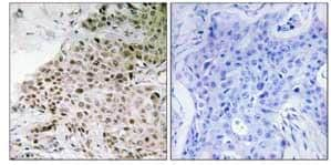 Immunohistochemistry (Formalin/PFA-fixed paraffin-embedded sections) - TAF13 antibody (ab111025)