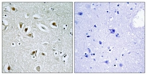 Immunohistochemistry (Formalin/PFA-fixed paraffin-embedded sections) - CDK2AP2 antibody (ab111027)