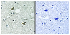 Immunohistochemistry (Formalin/PFA-fixed paraffin-embedded sections) - Girdin antibody (ab111035)